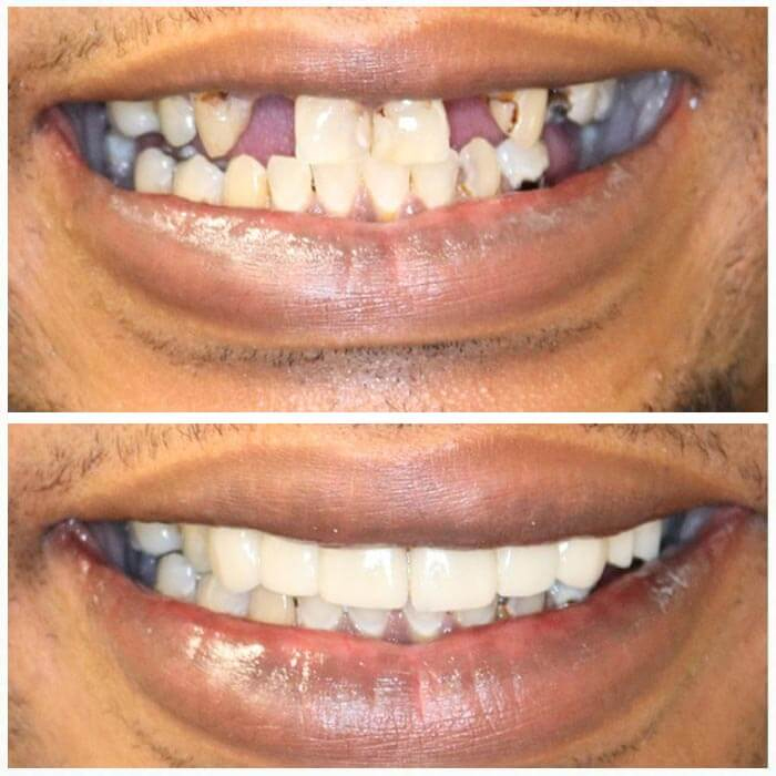 Smile Gallery 1 | Riverfront Dental