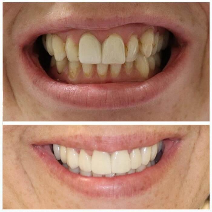 Smile Gallery 2 | Riverfront Dental