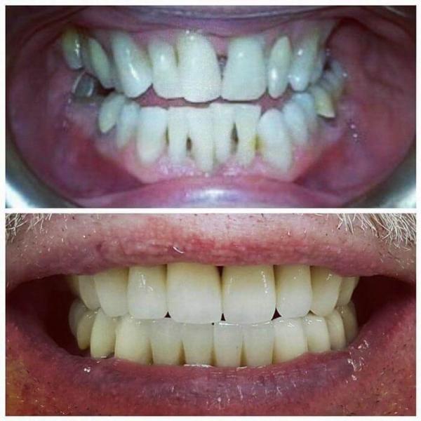 Smile Gallery 3 | Riverfront Dental