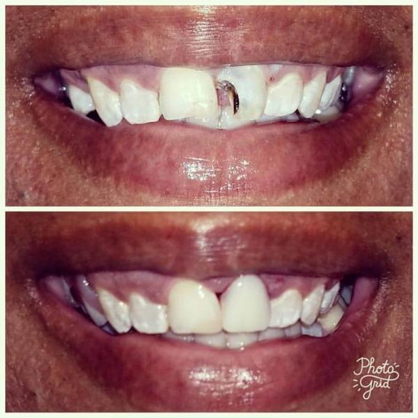 Smile Gallery 6 | Riverfront Dental