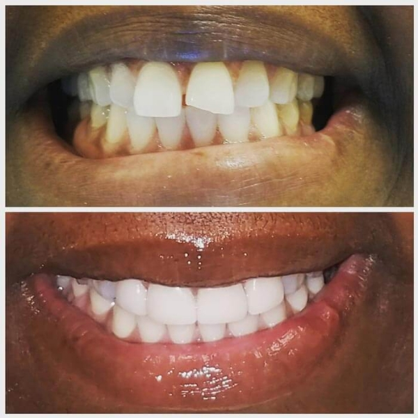 Smile Gallery 7 | Riverfront Dental