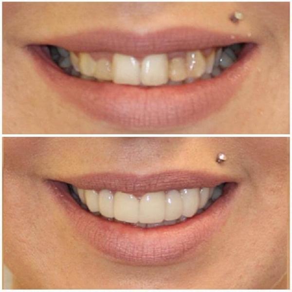 Smile Gallery 8 | Riverfront Dental