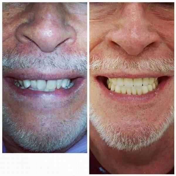 Smile Gallery 9 | Riverfront Dental