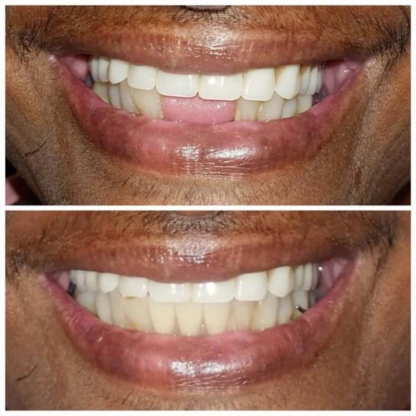 Smile Gallery 10 | Riverfront Dental