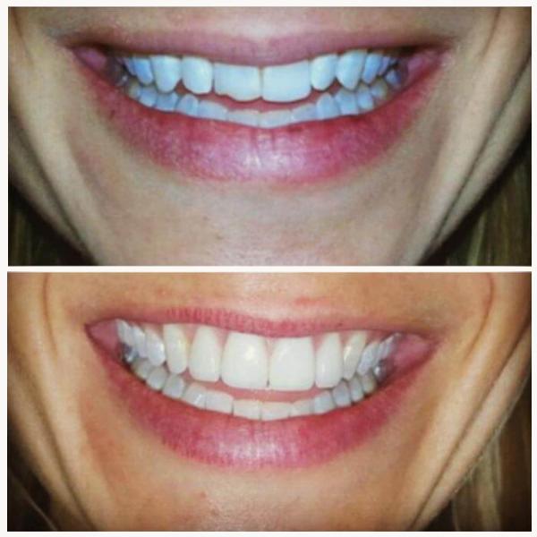 Smile Gallery 11 | Riverfront Dental