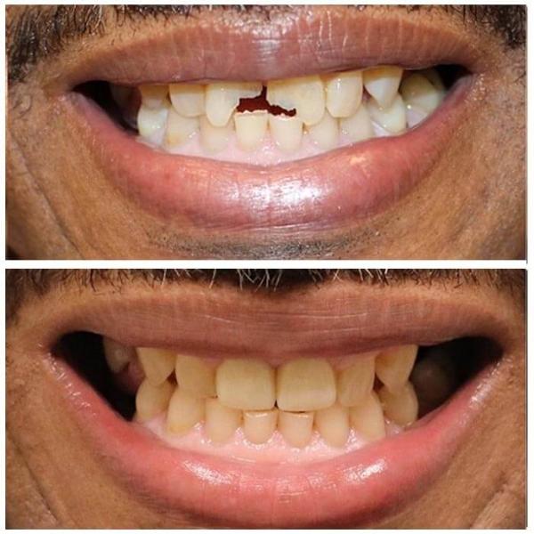 Smile Gallery 12 | Riverfront Dental