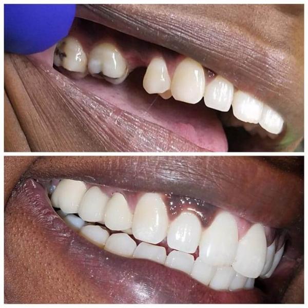 Smile Gallery 13 | Riverfront Dental